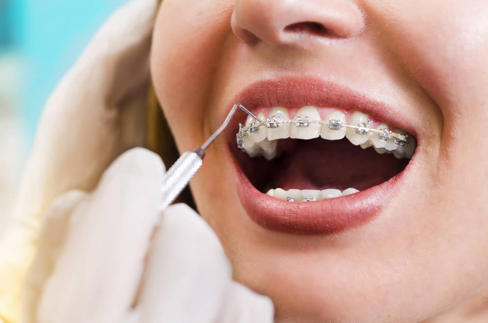 Ortodoncia, esa especialidad llena de mitos